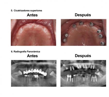 Implantes Dentales con Protesis Hibrida Smiles Peru (5)