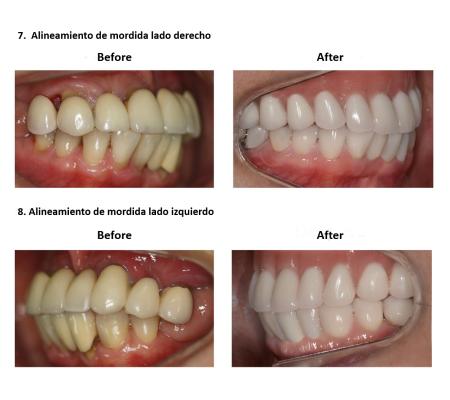 Implantes Dentales con Protesis Hibrida Smiles Peru (6)