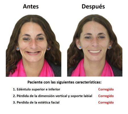 Protesis Fija Sobre Implantes Dentales Smiles Peru (1)