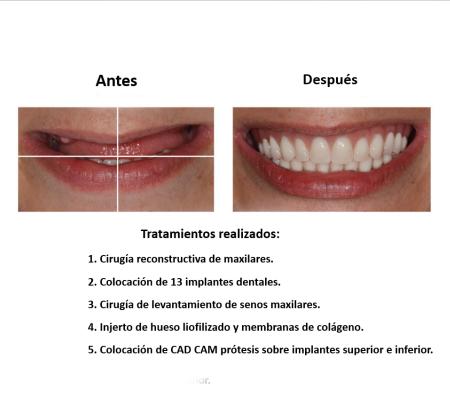 Protesis Fija Sobre Implantes Dentales Smiles Peru (2)