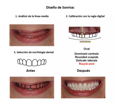 Protesis Fija Sobre Implantes Dentales Smiles Peru (3)
