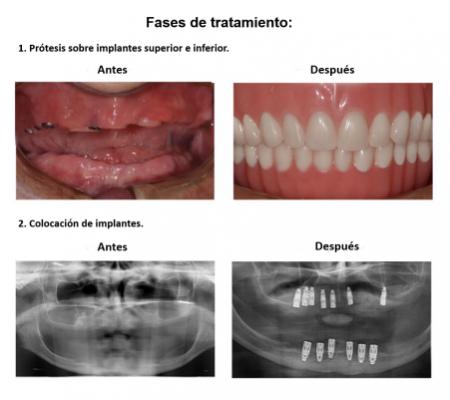 Protesis Fija Sobre Implantes Dentales Smiles Peru (4)