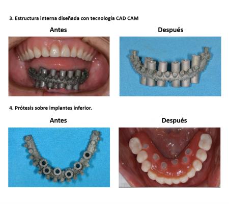 Protesis Fija Sobre Implantes Dentales Smiles Peru (5)