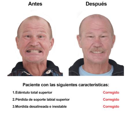 Injerto de Hueso Implantes Dentales Smiles Peru (1)