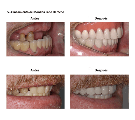 Injerto de Hueso Implantes Dentales Smiles Peru (2)