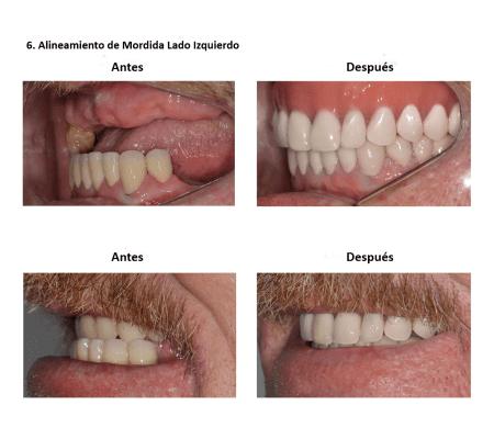 Injerto de Hueso Implantes Dentales Smiles Peru (3)