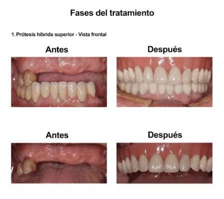 Injerto de Hueso Implantes Dentales Smiles Peru (4)