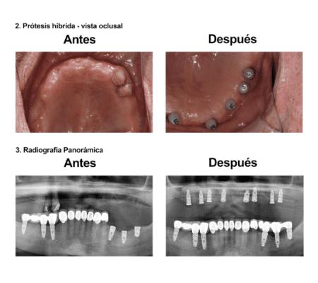 Injerto de Hueso Implantes Dentales Smiles Peru (5)