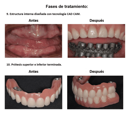 Protesis Fija sobre Implantes Dentales Smiles Peru (10)