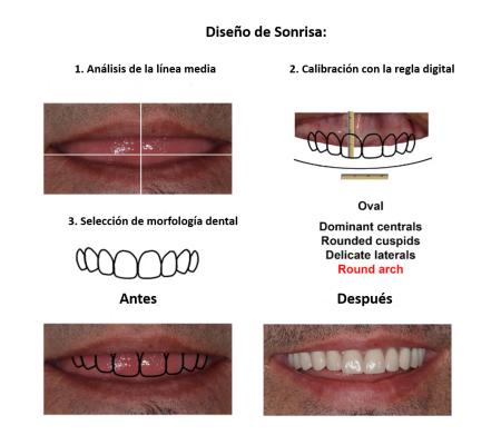 Protesis Fija sobre Implantes Dentales Smiles Peru (11)