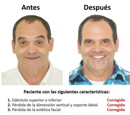 Protesis Fija sobre Implantes Dentales Smiles Peru (6)