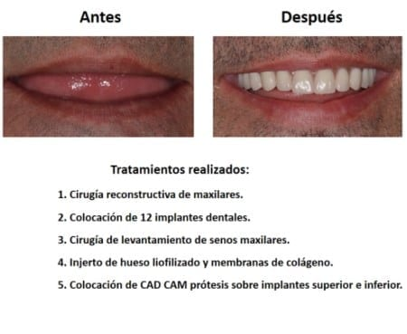 Protesis Fija sobre Implantes Dentales Smiles Peru (7)