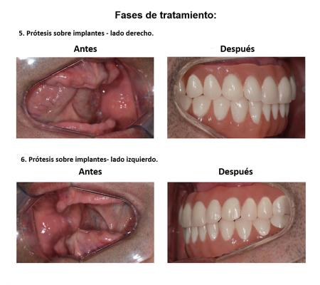 Protesis Fija sobre Implantes Dentales Smiles Peru (8)