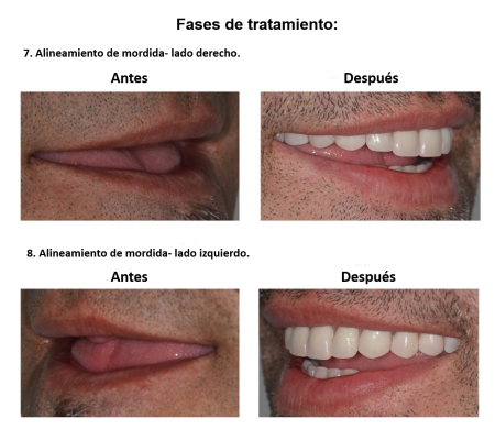 Protesis Fija sobre Implantes Dentales Smiles Peru (9)