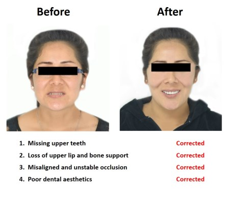 Dental Implants Lima Smiles Peru (1)