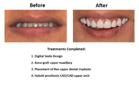 Dental Implants Lima Smiles Peru (2)