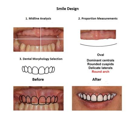 Dental Implants Lima Smiles Peru (3)
