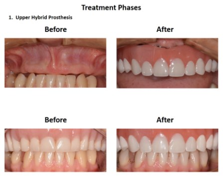 Dental Implants Lima Smiles Peru (4)