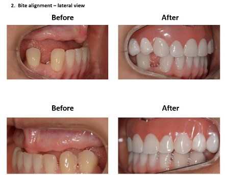 Dental Implants Lima Smiles Peru (5)