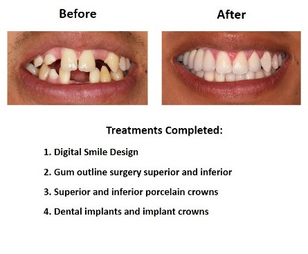Dental Implants and Porcelain Crowns (2)