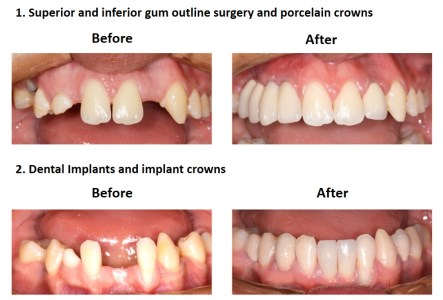 Dental Implants and Porcelain Crowns (3)