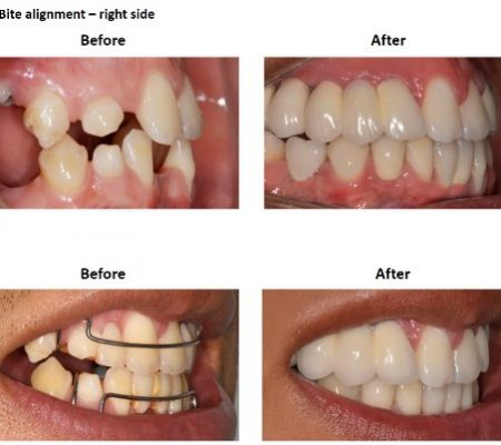 Dental Implants and Porcelain Crowns (5)
