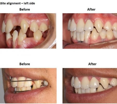 Dental Implants and Porcelain Crowns (6)