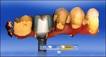 Implant-Crown-Smiles-Peru-CAD-CAM