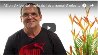 Smiles Peru Dental Testimonial Implants all on 6