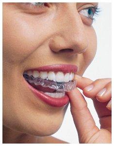 Smiles Peru Invisalign Lima Ortodoncia