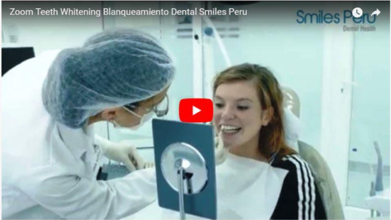 Smiles Peru Dental Whitening Zoom