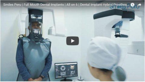 Smiles Peru Full Mouth Dental Implants