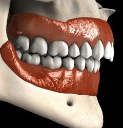 Clase 2 Retrognatia Cirugia Ortognatica Smiles Peru