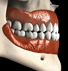 Clase 3 PrognatismoCirugia Ortognatica Smiles Peru