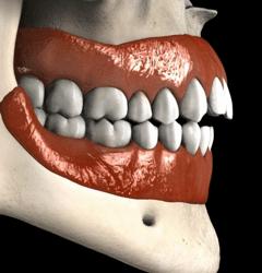 Mordida Abierta Cirugia Ortognatica Smiles Peru