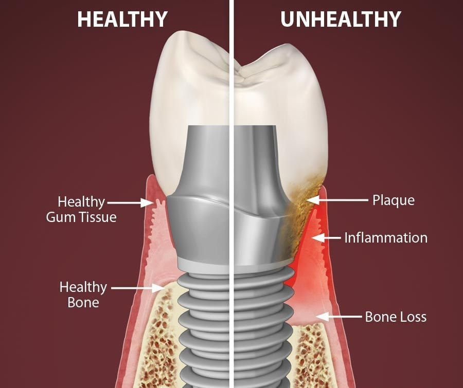 peri-implantitis Smiles Peru dental implants