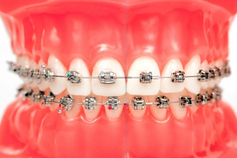 brackets metalicos Smiles Peru