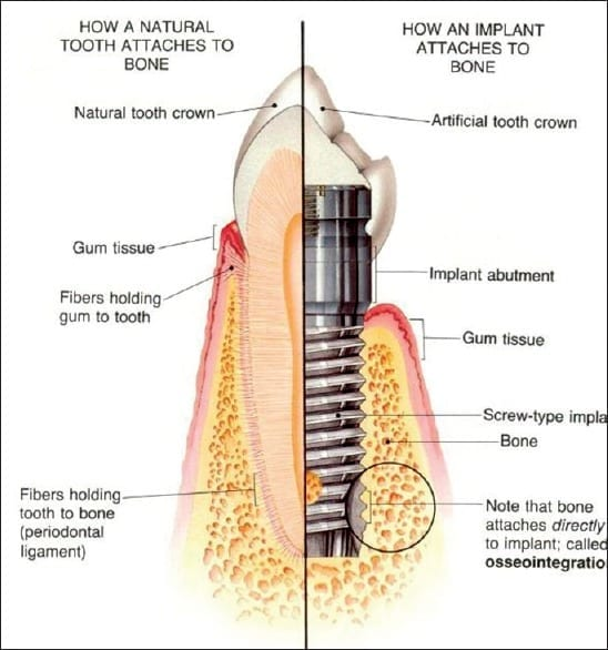 osseointegration Dental Implant Smiles Peru