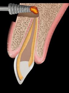Lesion Infecciosa apicectomia Smiles Peru