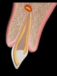 Smiles Peru Lesion Infecciosa apicectomia