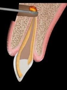 Smiles Peru apicectomia apicoectomy