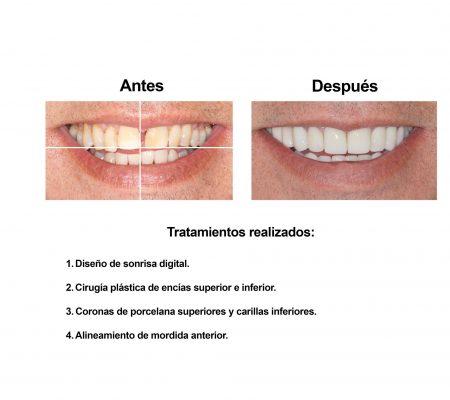 Carillas de Porcelana Smiles Peru (2)