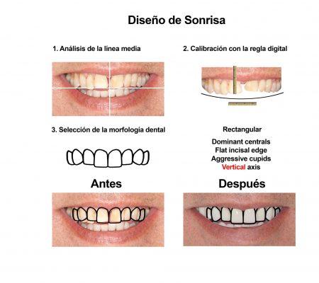 Carillas de Porcelana Smiles Peru (3)