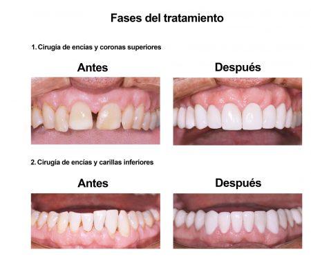 Carillas de Porcelana Smiles Peru (4)