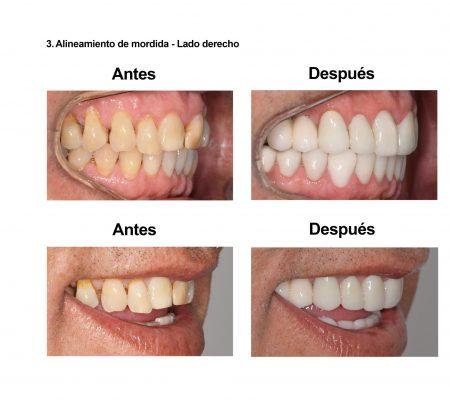 Carillas de Porcelana Smiles Peru (5)