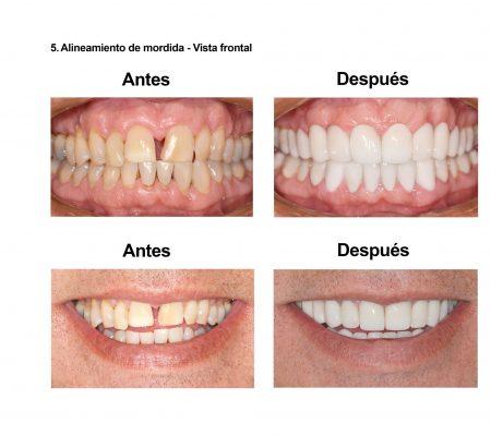 Carillas de Porcelana Smiles Peru (7)