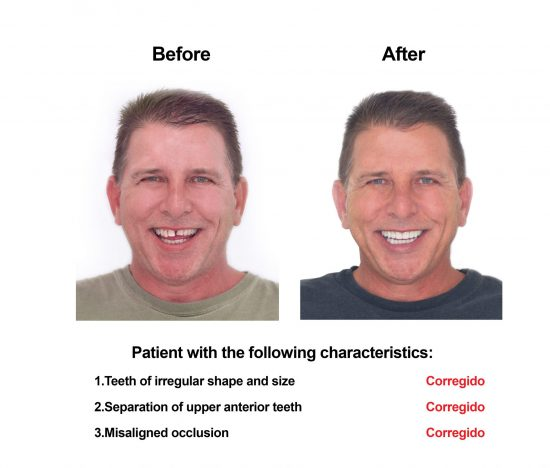 Cosmetic Dentistry and Rehabilitation Smiles Peru (1)