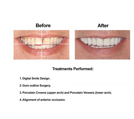 Cosmetic Dentistry and Rehabilitation Smiles Peru (2)