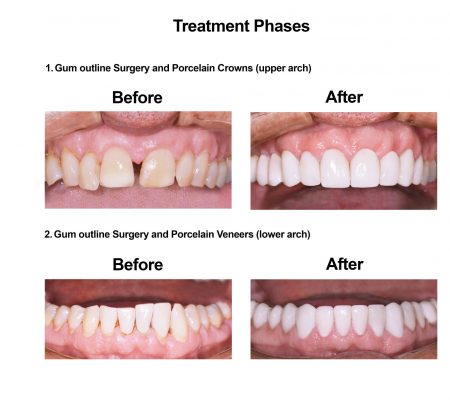 Cosmetic Dentistry and Rehabilitation Smiles Peru (4)
