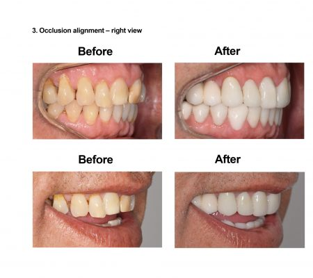 Cosmetic Dentistry and Rehabilitation Smiles Peru (5)